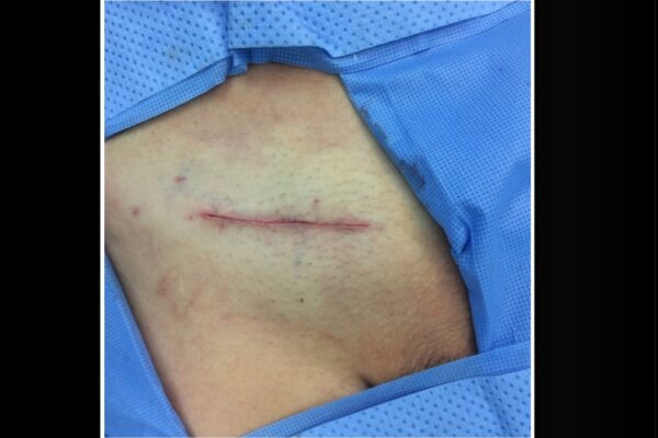 Final appearance of Incision after the surgery