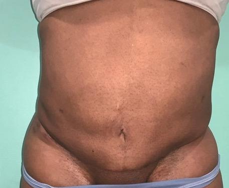 after abdominoplasty photo